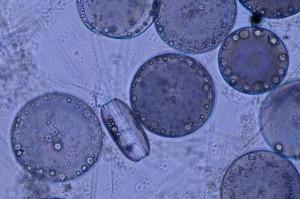 Plancton1